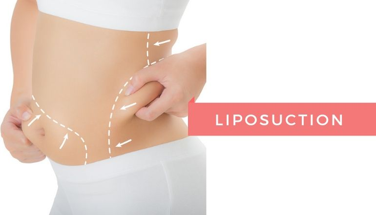 The Comprehensive Guide To Getting The Best Liposuction in Kolkata