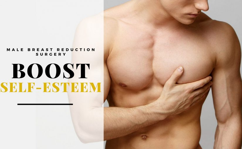 Male Breast Reduction Surgery – The Key to Boost Your Self-Esteem